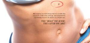 """Skin Cancer Is No """"S-Mole"""" Matter: Trust The Experts"""